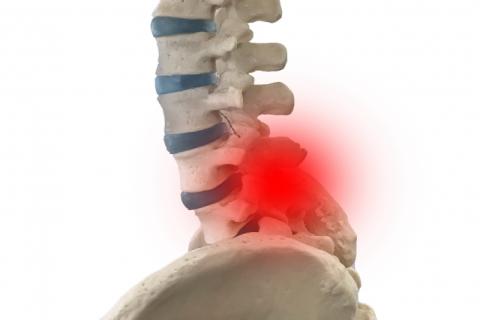 腰椎椎間板ヘルニアによる腰痛のテキスト