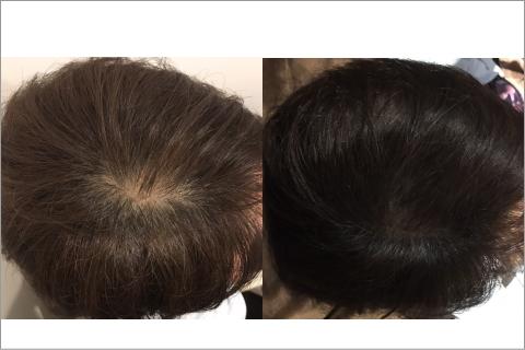 発毛満足度99.4%発毛